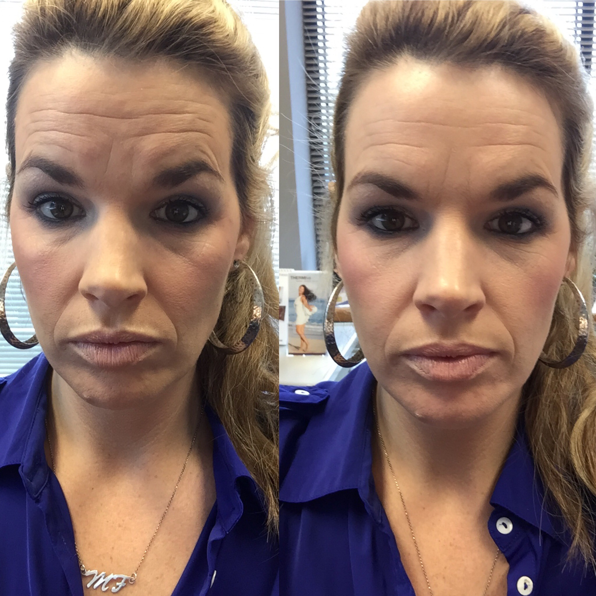 Why I Decided To Get Botox And Filler